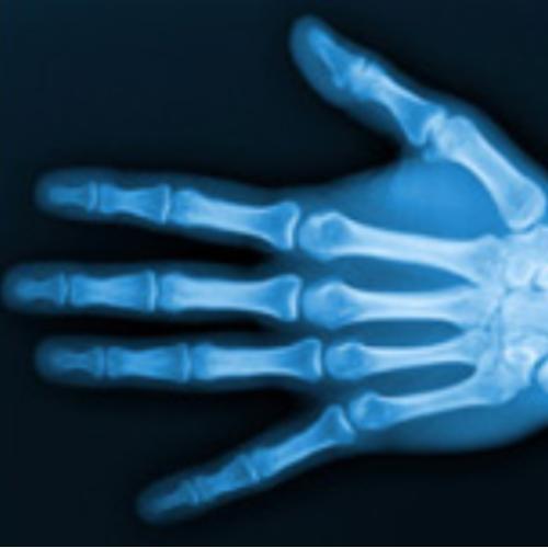 L'exercice libéral en radiologie